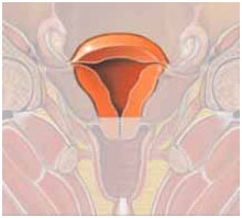 Hysteroscopy in India with select