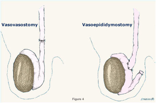 Vasectomy Reversal Surgery in India with select IVF Clinic