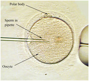 ICSI Treatment in India with Select IVF clinic Delhi