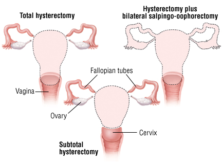 hysterectomy cost india 2019