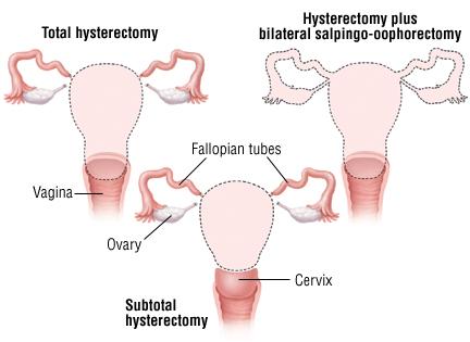 hysterectomy Cost Kolkata